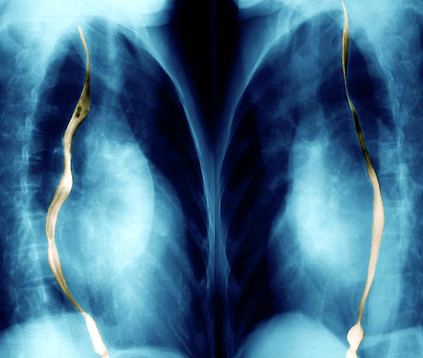 Cardiovascular Disease Wall Art - Photograph - Enlarged Heart by Zephyr/science Photo Library