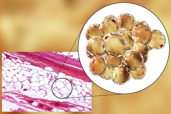 Adipose Tissue Photograph - Fat Cells by Kateryna Kon/science Photo Library