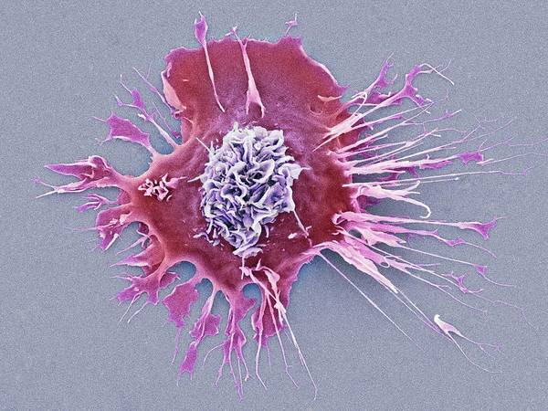 Kupffer Cell Photograph - Human Dendritic Cell by Dennis Kunkel Microscopy/science Photo Library