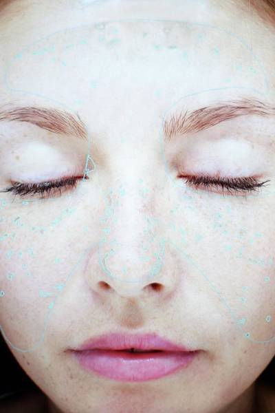 Wall Art - Photograph - Image Of Young Woman's Face In Skin Clinic by Science Photo Library