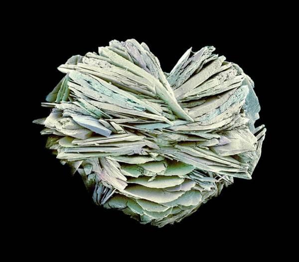 Deposit Photograph - Kidney Stone by Susumu Nishinaga