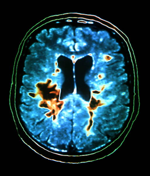 Resonance Wall Art - Photograph - Multiple Sclerosis by Zephyr/science Photo Library
