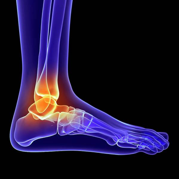 Wall Art - Photograph - Painful Ankle by Sciepro/science Photo Library