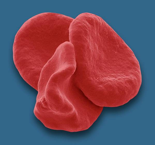 Rbcs Wall Art - Photograph - Red Blood Cells by Steve Gschmeissner