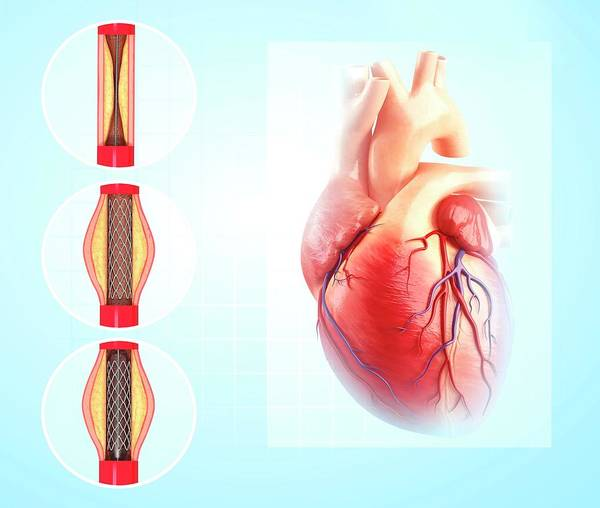 Wall Art - Photograph - Angioplasty by Pixologicstudio/science Photo Library