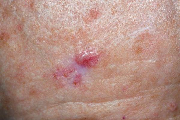 Wall Art - Photograph - Skin Cancer by Dr P. Marazzi/science Photo Library