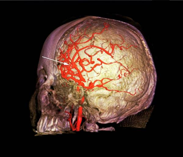 Cerebral Angiogram Photograph - Brain Haemorrhage by Zephyr/science Photo Library