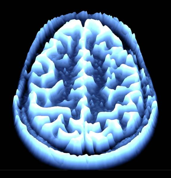 Wall Art - Photograph - Brain Scan by Alfred Pasieka/science Photo Library