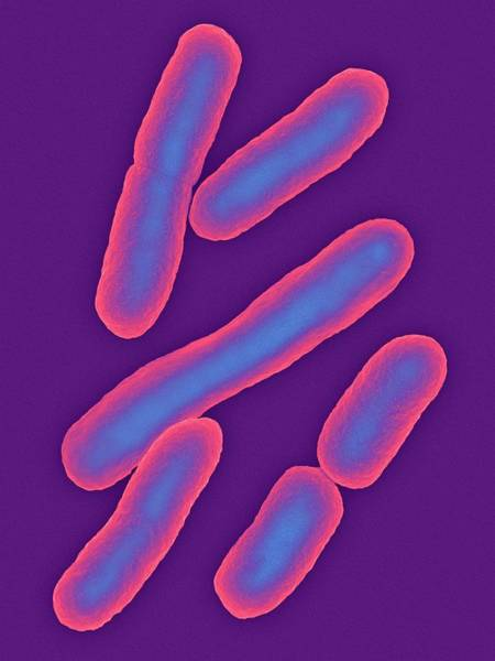 Wall Art - Photograph - E. Coli by Dennis Kunkel Microscopy/science Photo Library