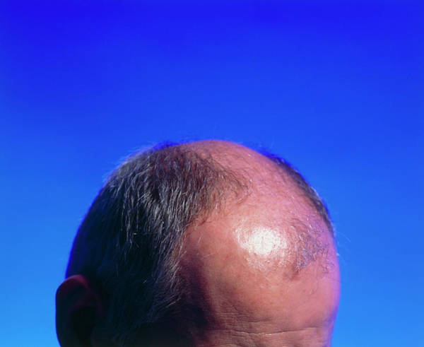 Wall Art - Photograph - Hair Transplant Surgery by Mauro Fermariello/science Photo Library