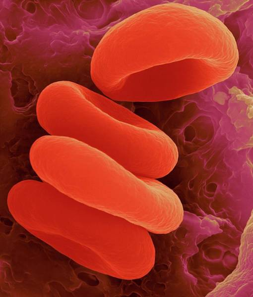 Capillary Wall Art - Photograph - Red Blood Cells In The Rouleau Formation by Dennis Kunkel Microscopy/science Photo Library