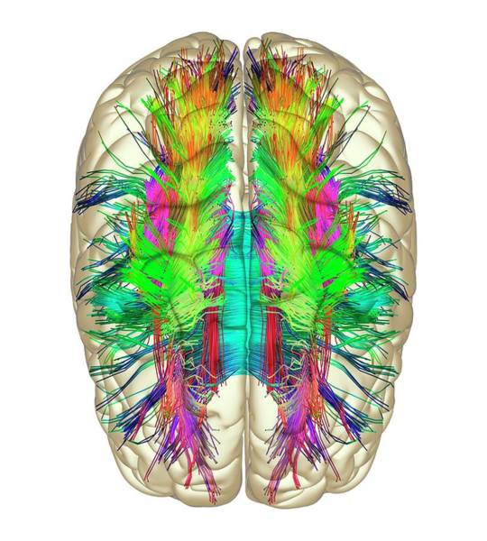 Brain Scan Photograph - White Matter Fibres And Brain by Alfred Pasieka
