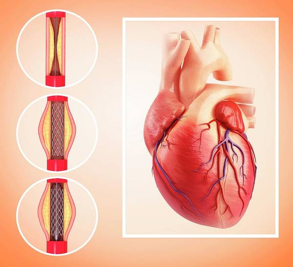Angioplasty Art Print by Pixologicstudio/science Photo Library