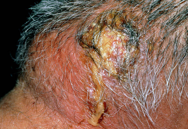 Boil Photograph - A Carbuncle On The Back Of The Neck Of A Patient by Science Photo Library