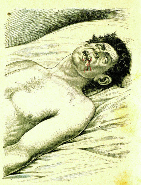 Subject Wall Art - Photograph - A Subject Suffering From Epilepsy by Universal History Archive/uig