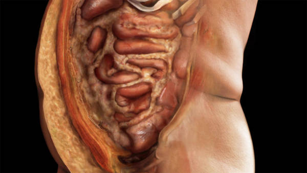 Wall Art - Photograph - Abdomen, Excess Fat, 2 Of 2 by Anatomical Travelogue