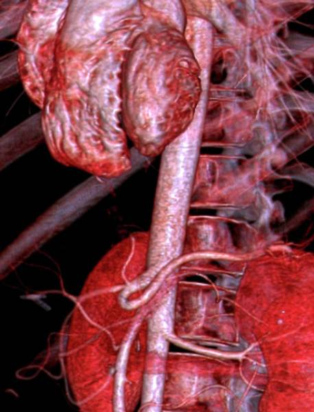 Cts Photograph - Abdominal Aorta by Zephyr/science Photo Library