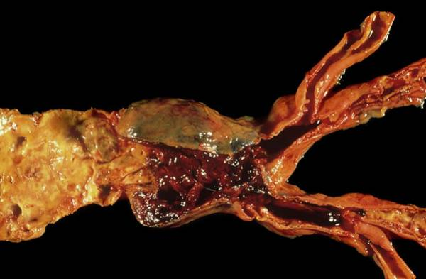 Abdominal Photograph - Abdominal Aortic Aneurysm by Pr. R. Abelanet - Cnr/science Photo Library