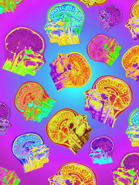 Mri Photograph - Abstract Coloured Mri Scans Of The Human Brain by Mehau Kulyk/science Photo Library