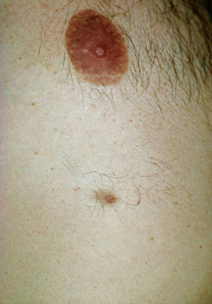 Nipples Wall Art - Photograph - Accessory Nipple On A Man's Breast by Dr P. Marazzi/science Photo Library
