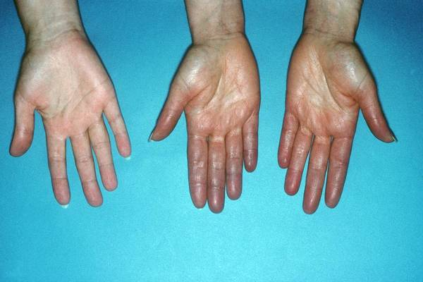 Patient Photograph - Acrocyanosis Of The Hands by St Bartholomew Hospital/science Photo Library