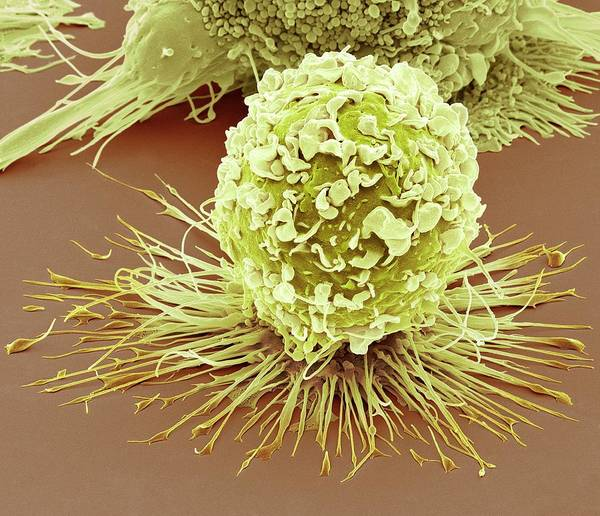 Immune Cell Wall Art - Photograph - Activated Macrophage by Steve Gschmeissner