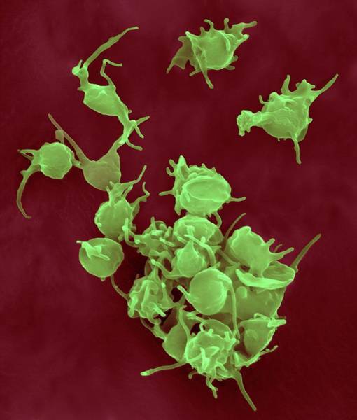 Fibrin Wall Art - Photograph - Activated Platelets by Dennis Kunkel Microscopy/science Photo Library