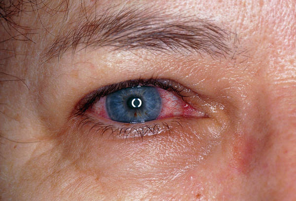Inflammation Wall Art - Photograph - Acute Iritis (eye) In Adult by Dr H.c.robinson/science Photo Library