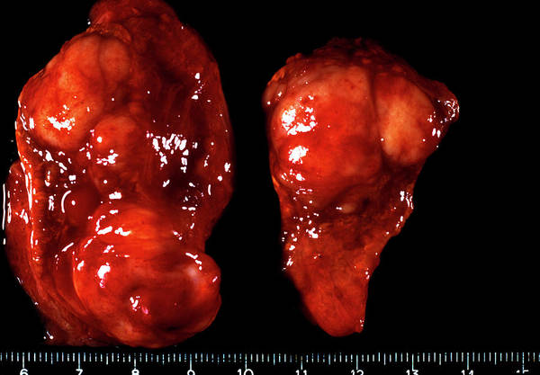 Adrenal Gland Photograph - Adrenal Gland Cancer by Cnri/science Photo Library