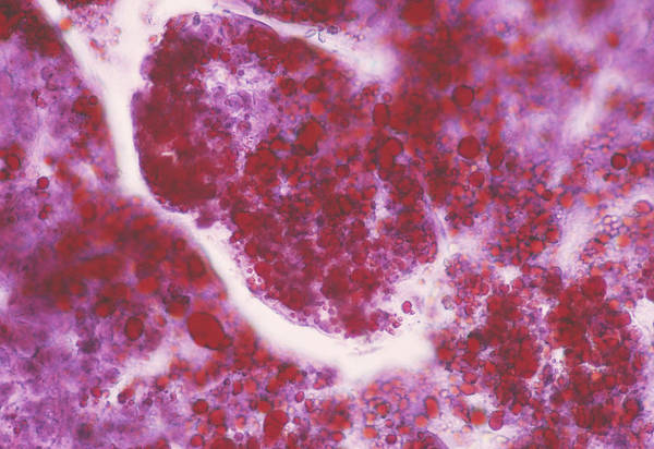 Adrenal Gland Photograph - Adrenal Gland Cells by Cnri/science Photo Library
