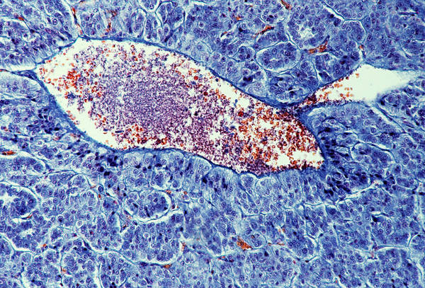 Adrenal Gland Photograph - Adrenal Medulla by Cnri/science Photo Library
