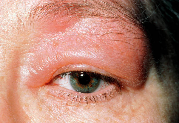 Reaction Wall Art - Photograph - Adult's Swollen Eyelid Due To Insect Bite Allergy by Dr P. Marazzi/science Photo Library