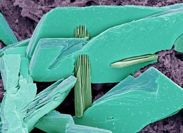 Protein Wall Art - Photograph - Albumen Crystals by Steve Gschmeissner