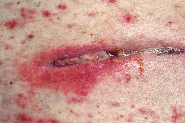 Wall Art - Photograph - Allergic Reaction To Surgical Dressing by Dr P. Marazzi/science Photo Library