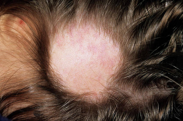 Alopecia Art Print by Dr P. Marazzi/science Photo Library