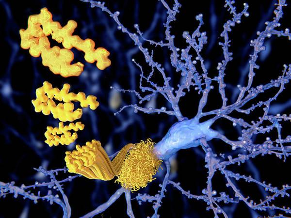 Wall Art - Photograph - Alzheimer Disease, The Beta-amyloid by Juan Gaertner