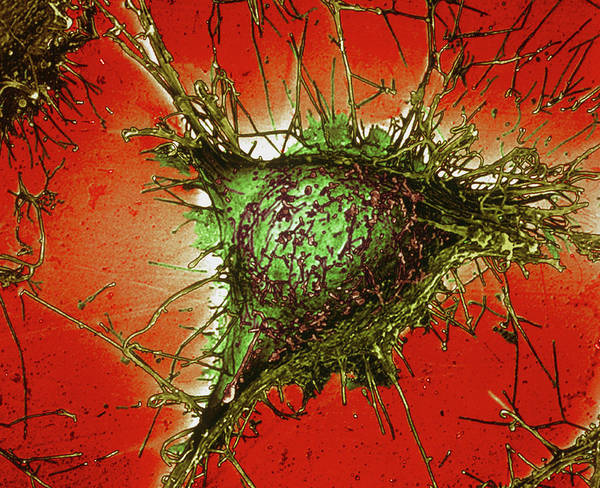 Microscopic Photograph - Alzheimer's Disease Culture Cell by Simon Fraser/science Photo Library