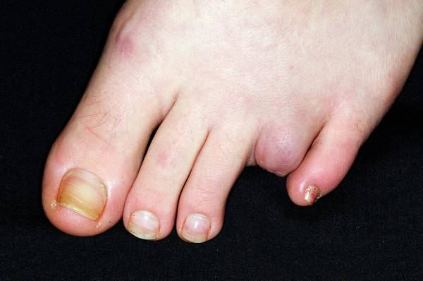 Wall Art - Photograph - Amputated Toe Due To Injury by Dr P. Marazzi/science Photo Library