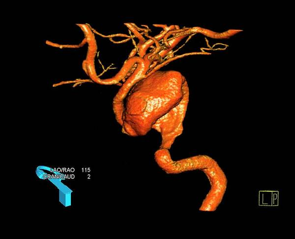 Cerebral Angiogram Photograph - Aneurysm In Neck Artery by Zephyr/science Photo Library