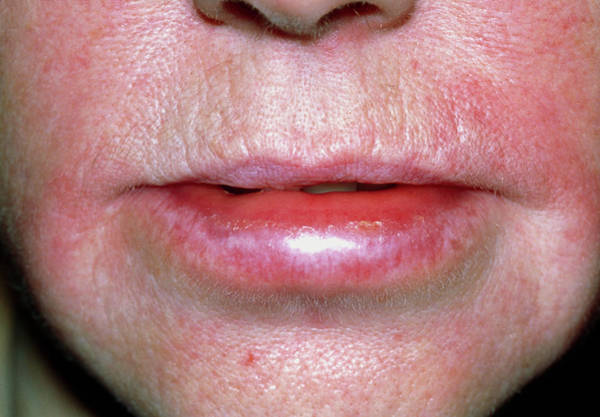 Lips Photograph - Angioedema Of The Lips Due To An Allergic Reaction by Dr P. Marazzi/science Photo Library