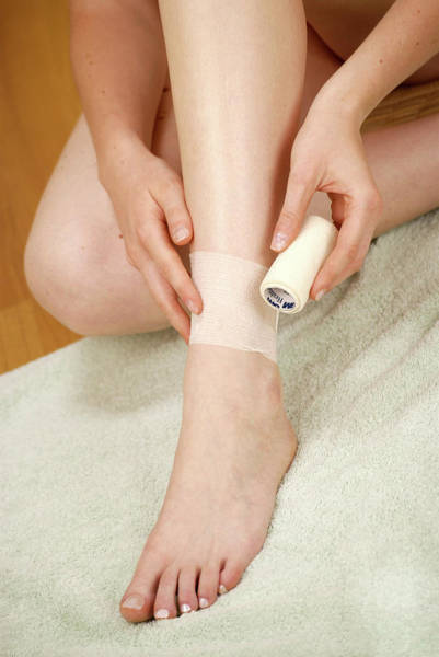 Bandage Photograph - Ankle Injury by Lea Paterson/science Photo Library