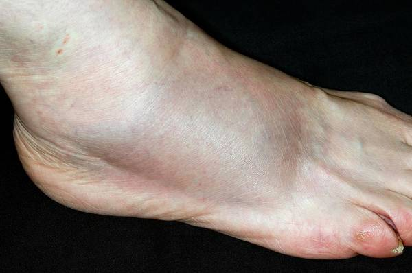 Patient Photograph - Ankle Sprain by Dr P. Marazzi/science Photo Library