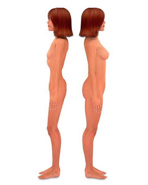 Anorexia Photograph - Anorexia Nervosa by Tim Vernon / Science Photo Library