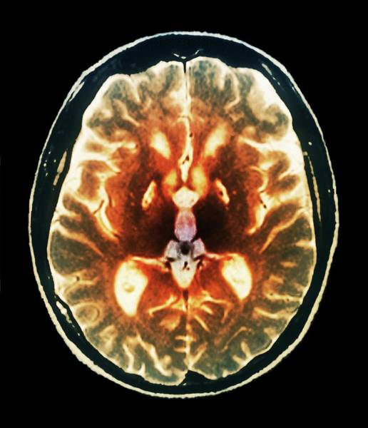 Resonance Wall Art - Photograph - Anoxia Brain Damage by Zephyr/science Photo Library