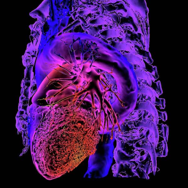 Cardiovascular Disease Wall Art - Photograph - Aortic Aneurysm by K H Fung/science Photo Library