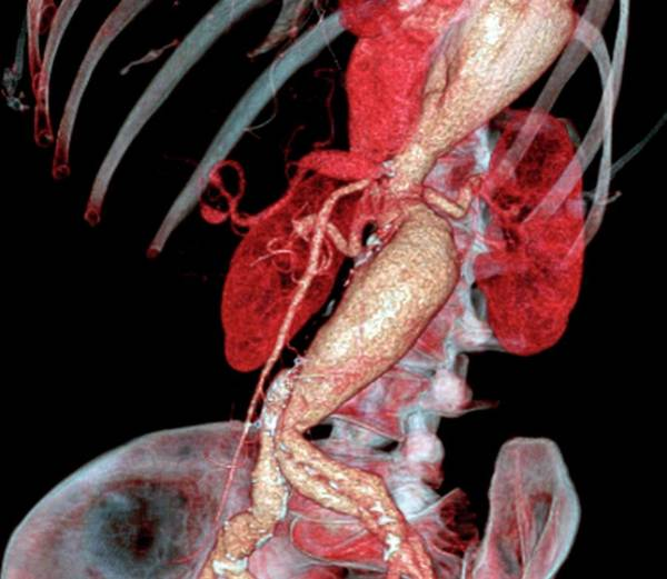 Radiological Photograph - Arterial Aneurysms In Marfan Syndrome by Zephyr