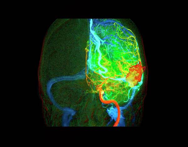 Cerebral Angiogram Photograph - Arteriovenous Malformation by Zephyr/science Photo Library