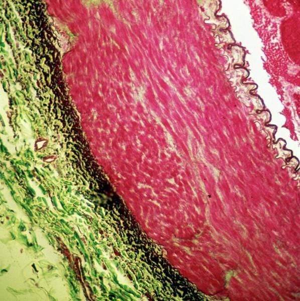 Artery Wall Art - Photograph - Artery Wall by Overseas/collection Cnri/spl