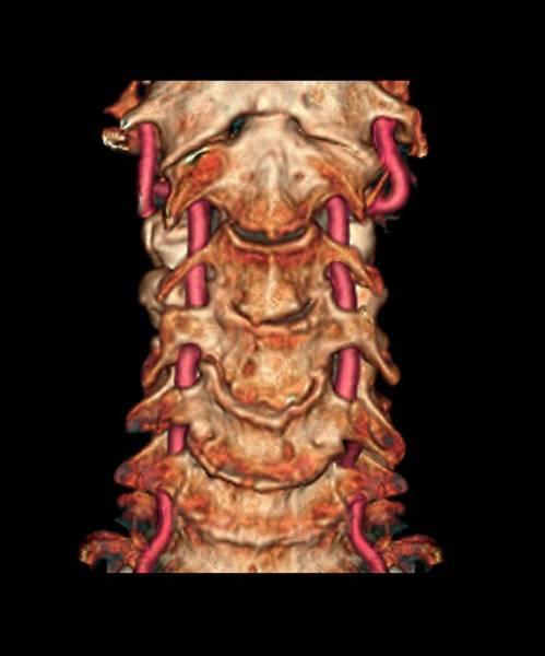 Vertebral Artery Photograph - Arthritis Of The Neck by Zephyr