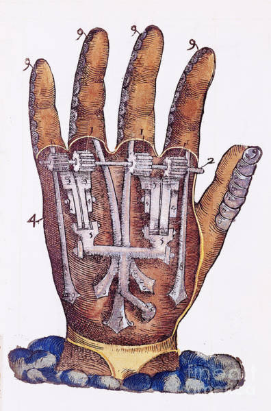Photograph - Artificial Hand Designed By Ambroise by Wellcome Images
